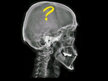 Skull01 (17k image)